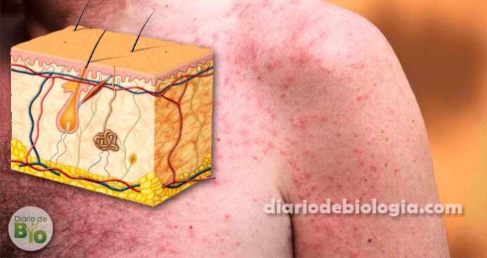 Brotoeja: O que é? Como tratar e aliviar os sintomas da alergia ao calor