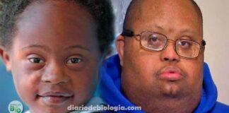 Síndrome de Down: É verdade que a doença não acontece em pessoas negras?