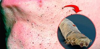 É verdade que os cravos na nossa pele são aracnídeos? Veja o vídeo