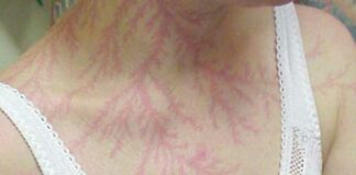 tatuagem causada por um raio
