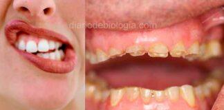 O que é bruxismo? Ranger os dentes dormindo tem graves consequências