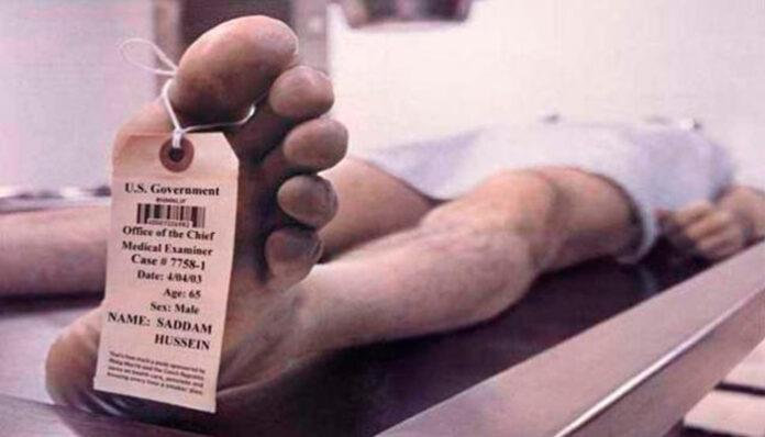 Fenômenos cadavéricos: Veja o que acontece no corpo depois da morte