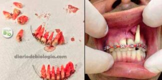 Aparelho ortodôntico caseiro: o perigo do aparelho dental feito em casa