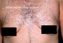 Ginecomastia (homem com seios): Qual o tratamento?