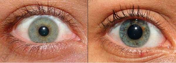 Por que nossas pupilas contraem e dilatam? - Diário de Biologia