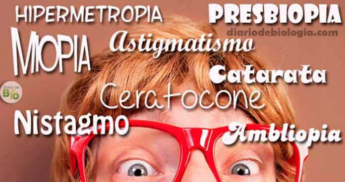 Diferença entre Miopia, astigmatismo, hipermetropia, ambliopia e outros