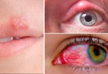 Usar maquiagem dos outros faz mal? Como fazer para evitar doenças?
