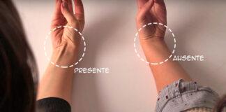 Evolução humana: Você tem esse tendão no pulso?