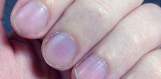 Unhas roxas podem ser um sinal de doença grave