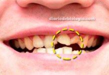Antibióticos estragam os dentes? Dentistas explicam se isso é verdade
