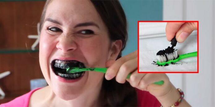 Dentes brancos: É verdade que o carvão ativado clareia os dentes