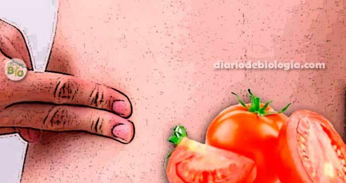 Dor da apendicite: comer sementes de tomate causa apendicite