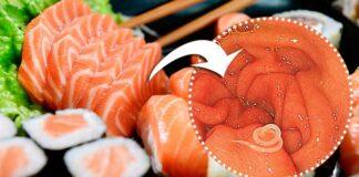 Verme do sushi: depois de comer comida japonesa mulher fica com vermes no estômago
