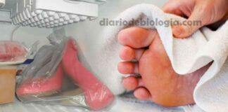 Como acabar com o chulé do sapato e do pé. Médico explica como fazer