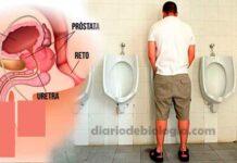 Sintomas de câncer de próstata: 5 primeiros sintomas que os homens sentem