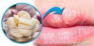 Tratamento para herpes labial: médico ensina remédio caseiro com alho pode curar herpes em um dia