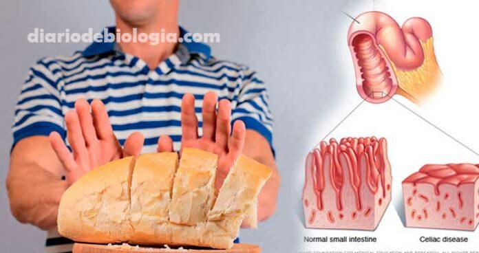 Doença celíaca: cientistas criam trigo geneticamente modificado para quem tem intolerância a glúten
