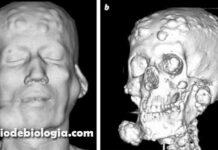 Síndrome de Gardner doença genética autossômica dominante