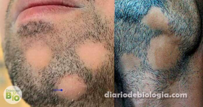 Barba falhada: perda de cabelo na barba pode ser alopecia areata
