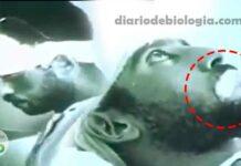 Vídeo perturbador mostra ser humano com raiva hidrofobia