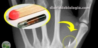 Você colocaria um implante de microchip na sua pele