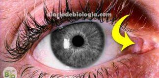 O que é essa membrana rosa no canto dos nossos olhos