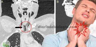 """Ao segurar o espirro, homem causou uma """"explosão"""" na garganta que perfurou a faringe"""