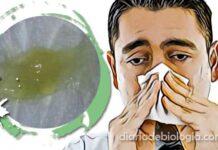 Catarro verde: 6 doenças que causam muco verde