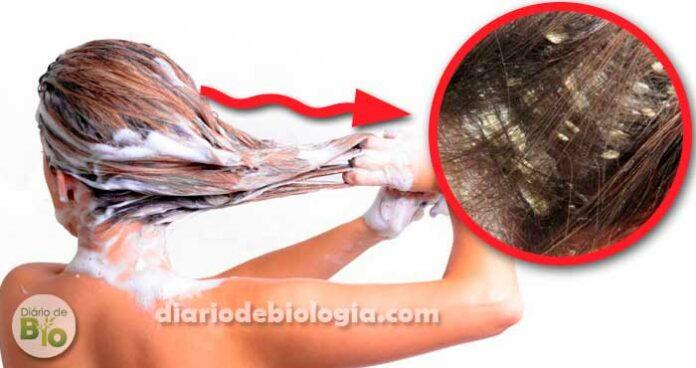 Lavar o cabelo todo dia causa caspa? Veja o que especialistas dizem