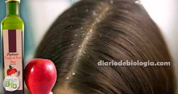 Vinagre de maçã pode acabar com a caspa? Especialistas explicam