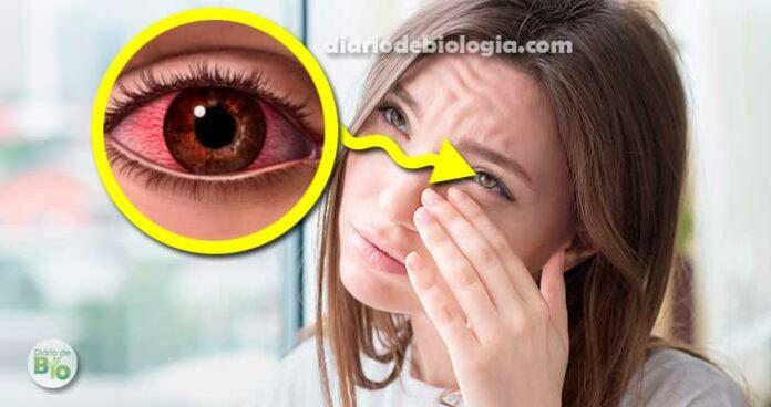 Olhos coçando: o que pode ser e como tratar a coceira nos olhos