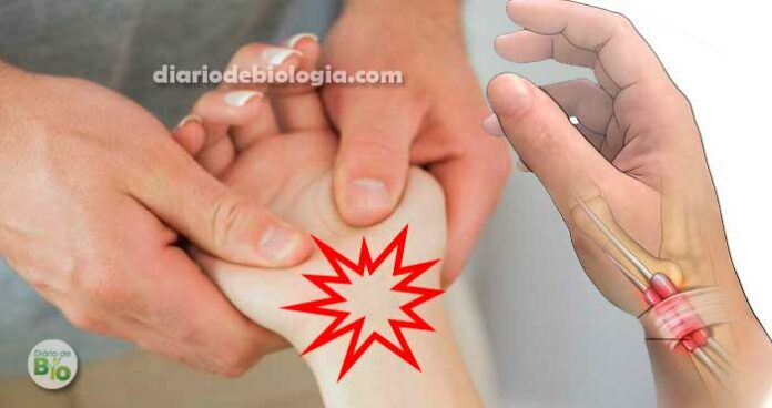 Dor no pulso (punho): Médicos explicam o que pode ser e o que fazer