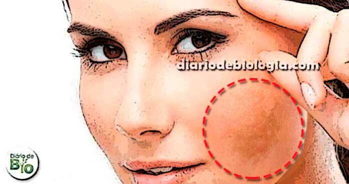Como tirar manchas do rosto? Tratamentos para melasma [naturais]