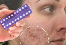 Melhor anticoncepcional para acne (espinha) inflamada e infeccionada