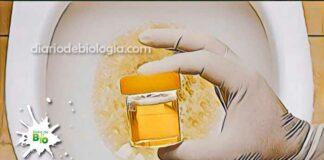 Urina com espuma proteinúria