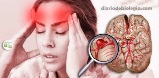 Sintomas de Aneurisma Cerebral