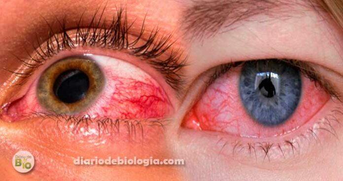 Olhos vermelhos e irritados: O que pode ser? Quando ir ao hospital?
