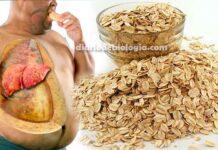 Dieta para gordura no fígado. Dica natural para acabar com a esteatose