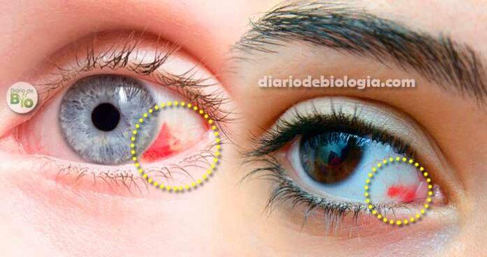 Mancha de sangue no olho - derrame ocular: o que pode ser e como tirar