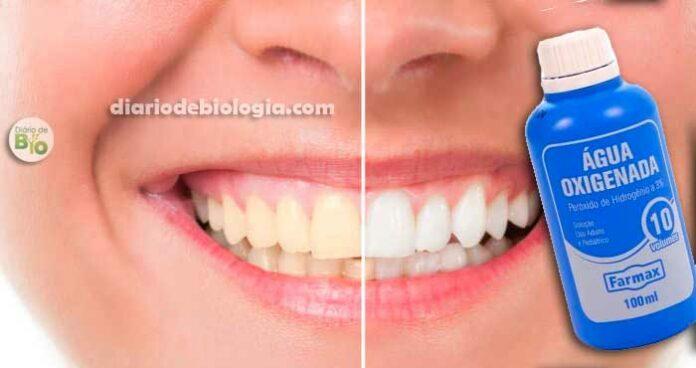 Clareamento dental caseiro: Água oxigenada realmente clareia os dentes?
