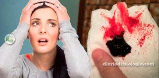 Menstruação com coágulos: O que pode ser? É normal?