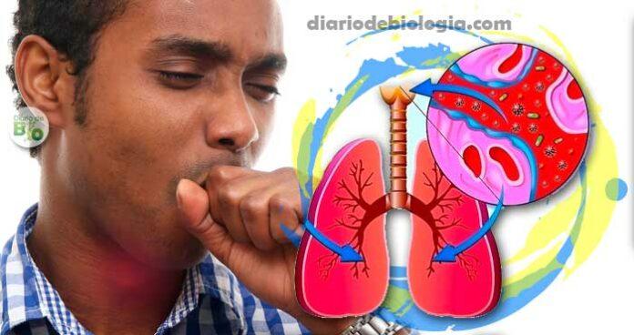 Xarope para tosse seca: Aprenda um xarope, um chá e um gargarejo
