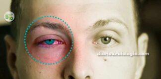 sintomas de conjuntivite e tipos de conjuntivite