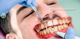 Higiene bucal: não escovar os dentes pode causar pneumonia e infarto