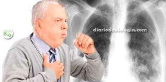 Pneumonia vs bronquite: qual a diferença de sintomas?