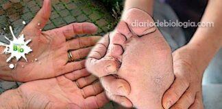 Mãos e pés gelados, o que pode ser? Veja as doenças mais comuns