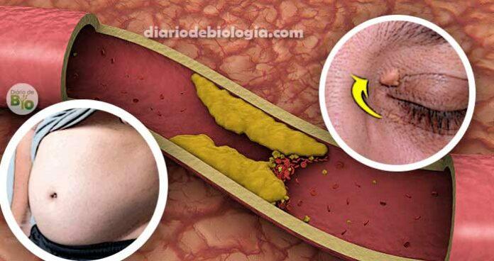 Sintomas de colesterol alto: tem como saber sem fazer exame de sangue?