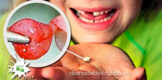 Dente de leite tem células-tronco