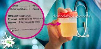 filamentos de muco na urina