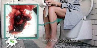 Coágulos de sangue na menstruação